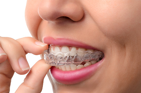 Clear Ortho Aligners
